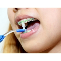 Зубные щетки для чистки брекетов