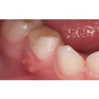 Гнойник на десне около зуба у взрослого (воспаление, мешок): как избавиться, что делать, если появился, лечение, как вытянуть