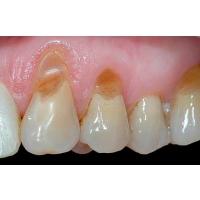 Дырка в зубе - что делать, как лечить?