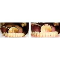 Налет на зубах - причины и способы удалить зубной налет
