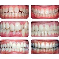 """Выравнивание зубов у взрослых и детей, цена на пластинки для выравнивания зубов– ПC """"Ласка"""" Киев"""