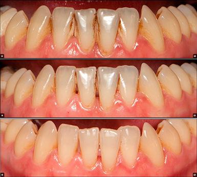 Чистка зубов ультразвуком москва