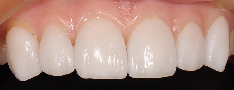 зубные виниры perfect smile veneers купить
