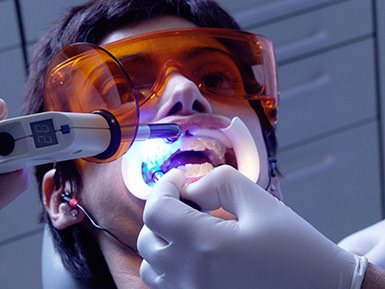 отбеливание зубов где лучше