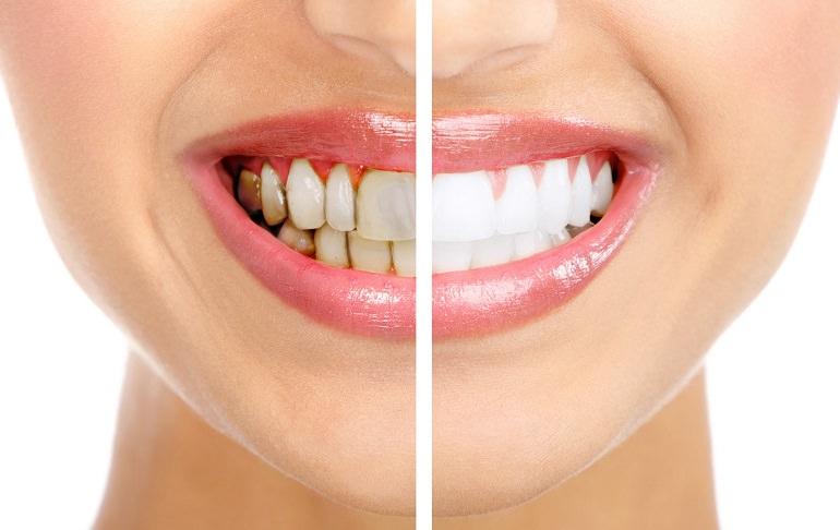 Зубной камень 03