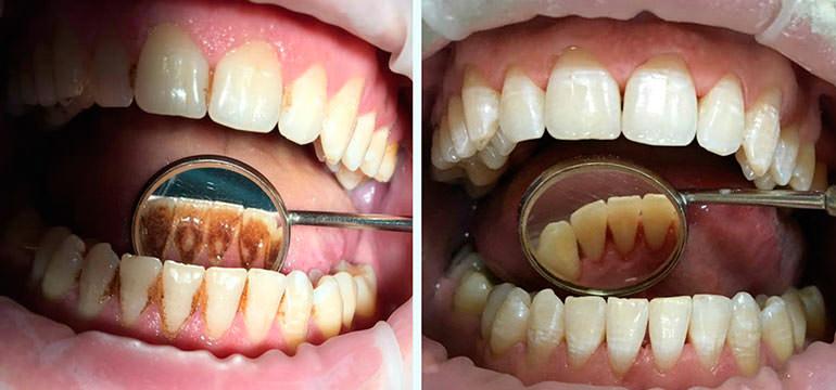 Зубной камень: удаление и чистка в стоматологии Місто Дент