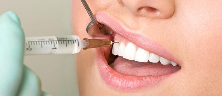 Чем обезболивают зубы в стоматологии