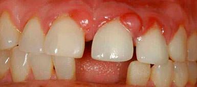 Как лечить язвы во рту: симптомы, лечение, народные средства